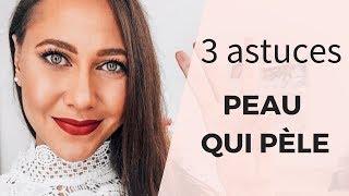 Peau qui pèle (visage) : 3 solutions simples et efficaces pour arrêter de peler