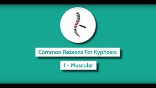 Video screen capture of What is kyphosis?