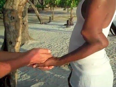 Incredible Broken Arm - You Have Been Warned