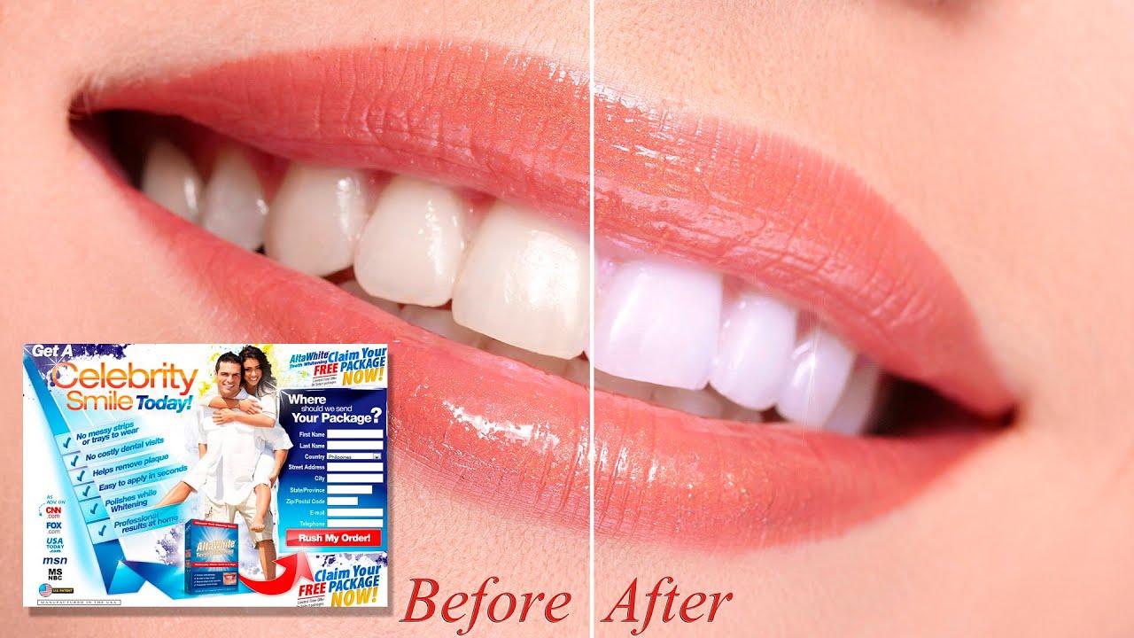 Alta White Teeth Whitening Does It Work Alta White Review Youtube