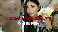 hqdefault - Drospirenona Y Etinilestradiol Acne