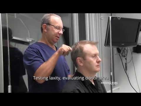 Hair Transplant Surgery - Watch An Entire Surgery!