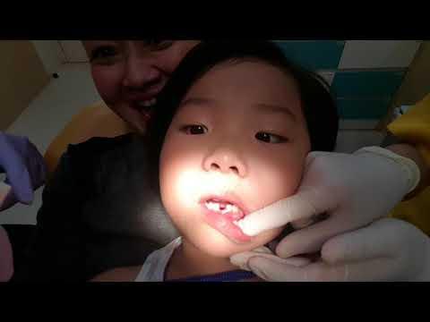 Cara Memutihkan Gigi dengan Cara Alami !  dcc4338f9d
