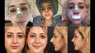 Burun Ameliyatı Öncesi ve Sonrası!| Estetik, Ameliyat sürecim, Fotoğraf ve videolu