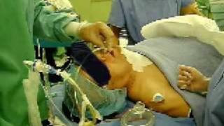 チューブエクスチェンジャー を留置したまま 抜管 tube exchanger