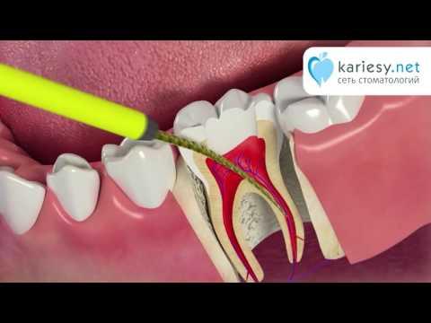 Пульпит. Лечение каналов зуба.