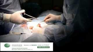 Обрезание крайней плоти(, 2014-11-18T17:54:58.000Z)