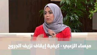 ميساء الزعبي - كيفية إيقاف نزيف الجروح