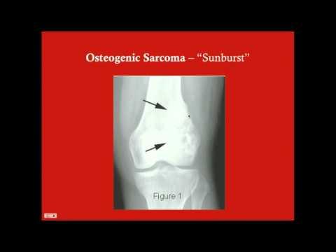 Orthopedic Tumors - CRASH! Medical Review Series