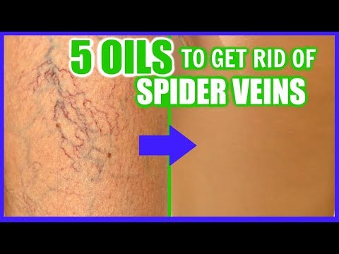 how-to-get-rid-of-spider-veins-with-essential-oils!-│-top-5-oils-to-fade-and-erase-varicose-veins!