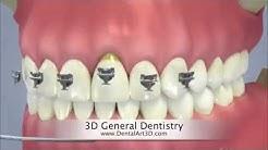 DentalArt3D. 3D General Dentistry
