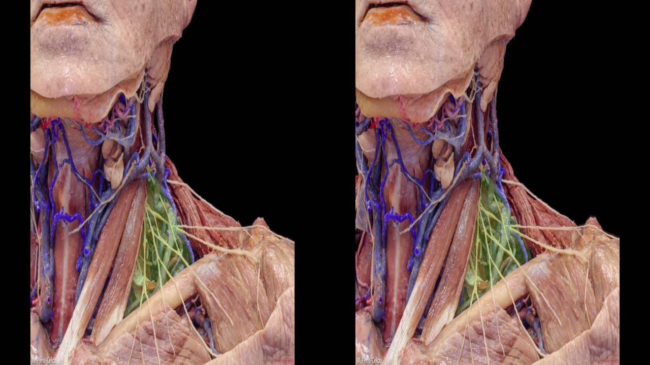 Head and Neck Anatomy for Neurosurgeons (3D TV)