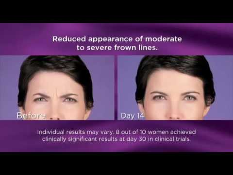 BOTOX® Cosmetic by Allergan 2