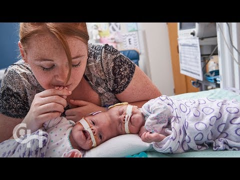 Conjoined Twins Abby and Erin Delaney: A Year in the Life