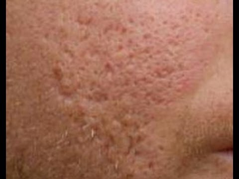 Strain Of Acne-Causing Bacteria Found To Actually Preserve ...