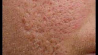 Do At Home Acne Scar Treatments Work [DermTV.com Epi #458]