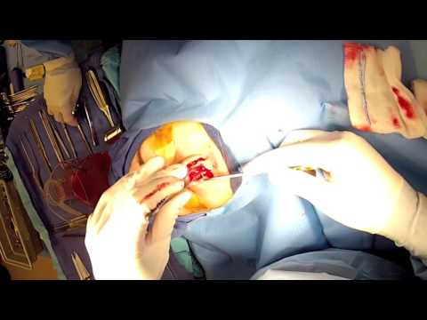 6 Open' Rhinoplasty Part 7 Dr  Naderi 'droopy nose tip correction' in chevy chase maryland, Mclean