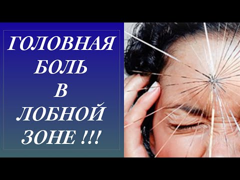 Сильно болит лобная часть головы