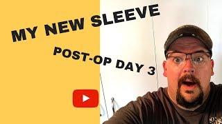 VSG Surgery | Post Op Day 3 | April 23, 2018