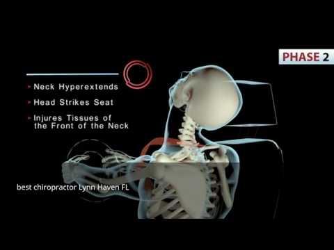 best chiropractor Lynn Haven FL