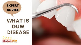 Now Trending - Learn about Gum Disease and the Treatments – Dr. Michael Stern