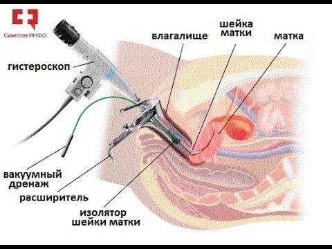 Миома матки: лечение гистероскопической энуклеацией или операция удаления лазером