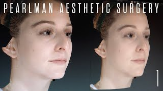 Rhinoplasty Pre-Op 3D Imaging with Dr. Steven Pearlman | Part 1