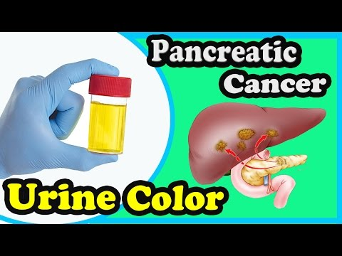 6 Common Symptoms Of Pancreatic Cancer