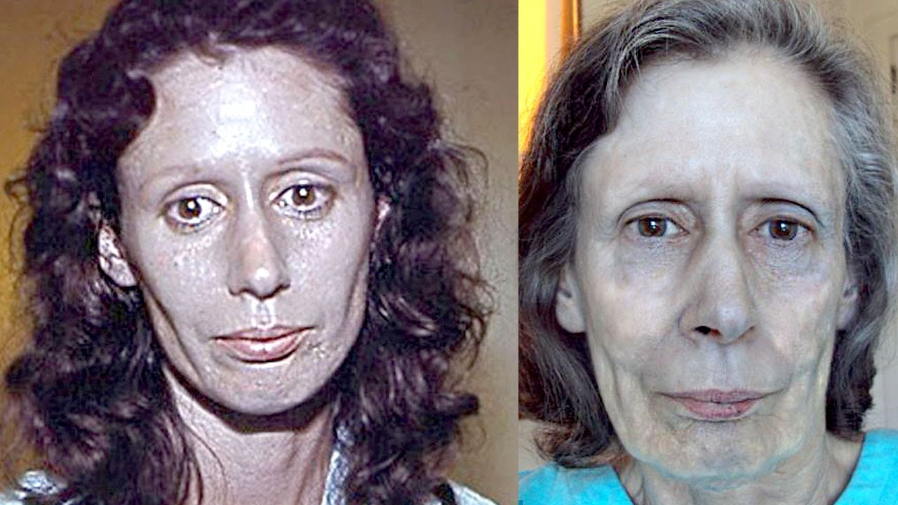 Woman's Skin Turns Silver For 60 Years - Rosemary Jacobs ...