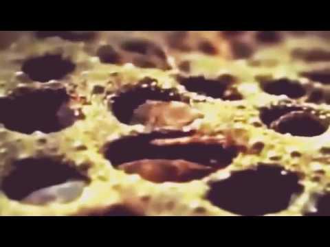 Video Nặn Mụn Kinh Dị Ghê Nhất Thế Giới