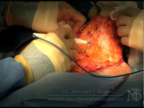 Abdominoplasty or simplified tummy tuck with no muscles sewn,  Part 1
