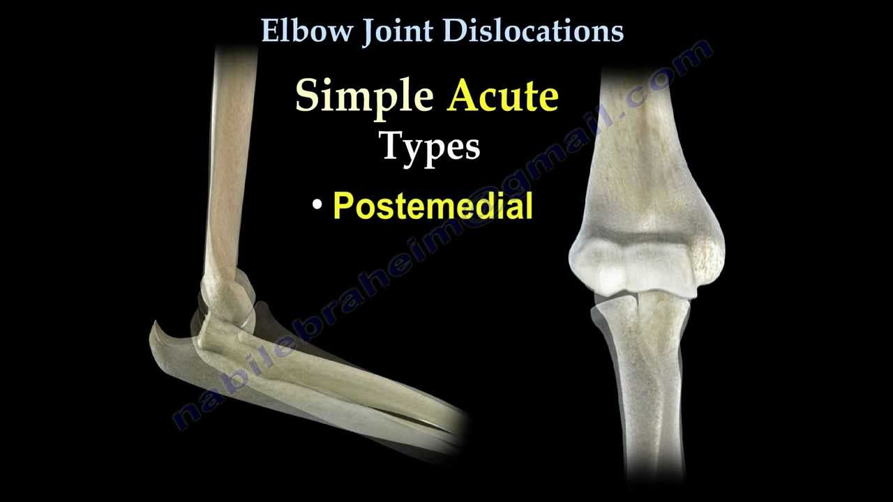 Elbow Dislocations Everything You Need To Know Dr Nabil