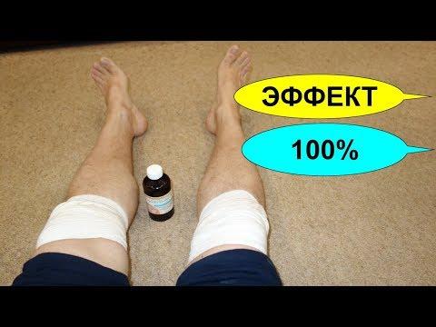 Лечение артроза и артрита перекисью водорода по методу Неумывакина. Эффективно на 100%