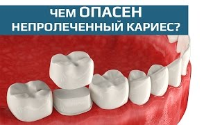 Зубные коронки. Восстановление жевательного зуба зубной коронкой(Зубные коронки – это незаменимое составляющее любого протезирования зубов. Они используются в случае..., 2015-07-15T19:52:50.000Z)