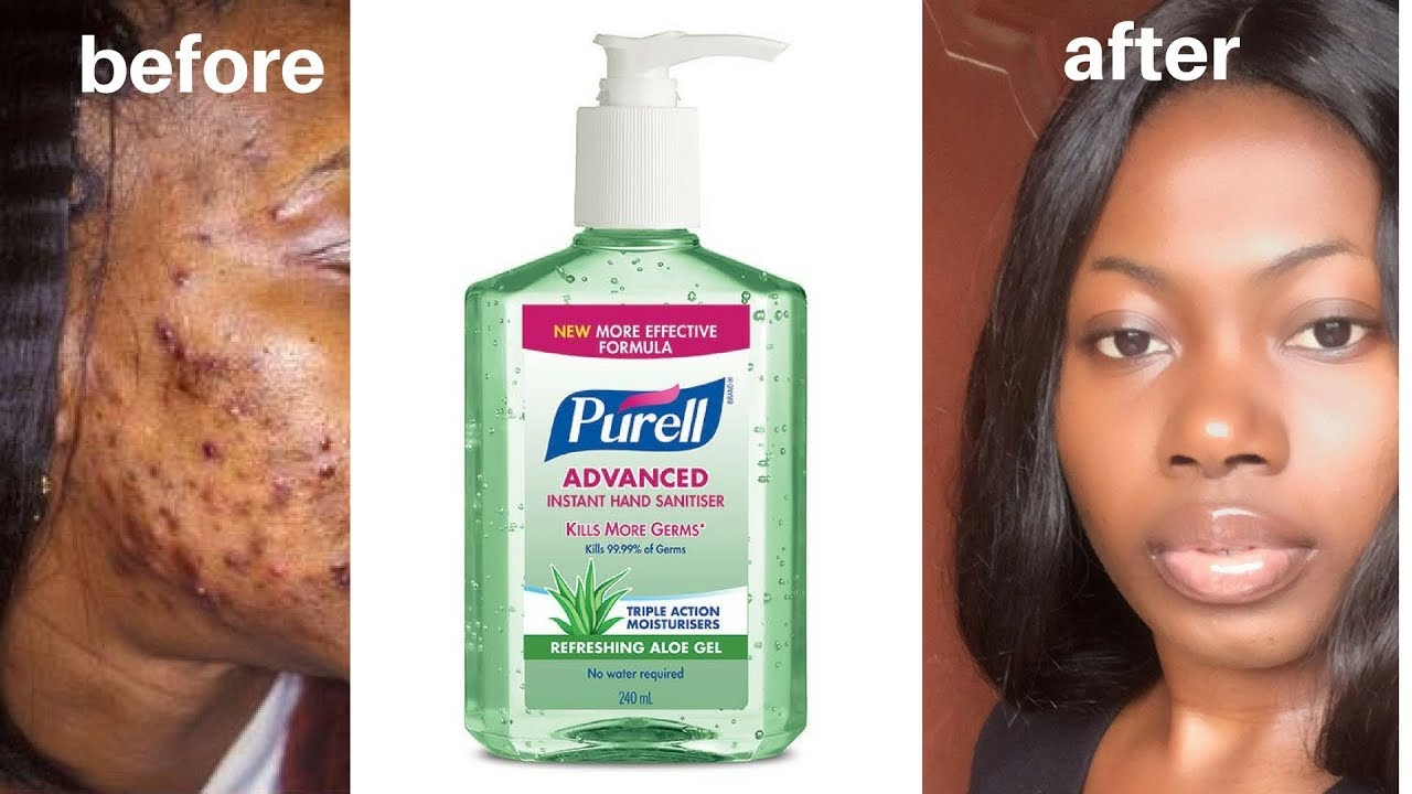 I Used Hand Sanitiser To Clear Acne In 24 Hours Youtube