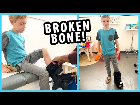 Jacob Broke His Foot