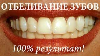 Как отбелить зубы в домашних условиях за 3 минуты (100% результат!)(Как отбелить зубы в домашних условиях быстро за 3 минуты (100% результат!). Натуральные безопасные способы..., 2016-03-01T14:56:20.000Z)
