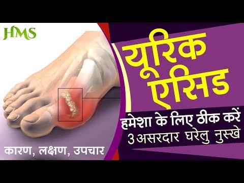 Uric Acid और गठिया को तेजी से ठीक करें 3 सबसे कामयाब नुस्खे Cure Uric Acid & Gout fast Naturally