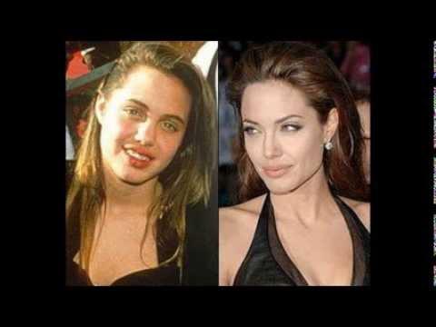 Шок!До и после пластических операций