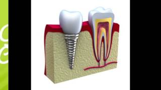 Dental Implant Santa Rosa CA discussion with Dr. Josh Hammer Thumbnail