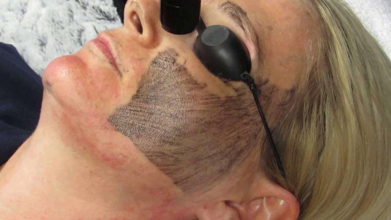 skincare facial las vegas