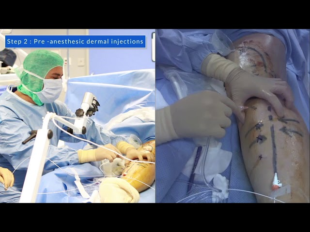 Controlled Ultrasound-Guided Targueted Tumescent Anaesthesia