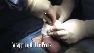 Surgery - Penis Enlargement - Educational