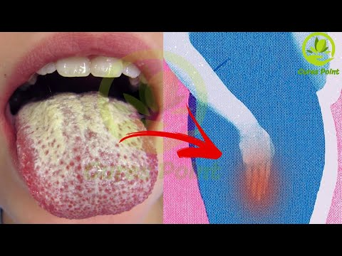 private-part-infection-treatment-|-best-foods-that-prevent-yeast-infections
