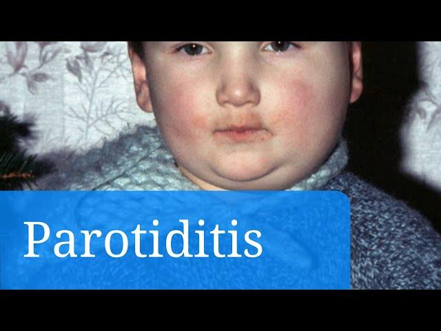 Parotiditis causas y prevencion