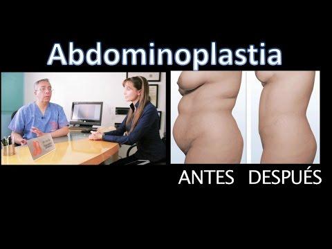 Abdominoplastia Todo lo que necesita saber | Postoperatorio, Cicatrices, Fotos antes despues, video