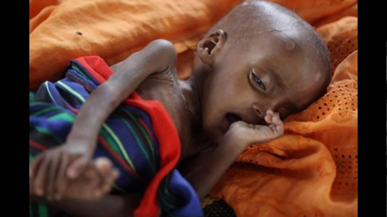 дети в африке голодные фото