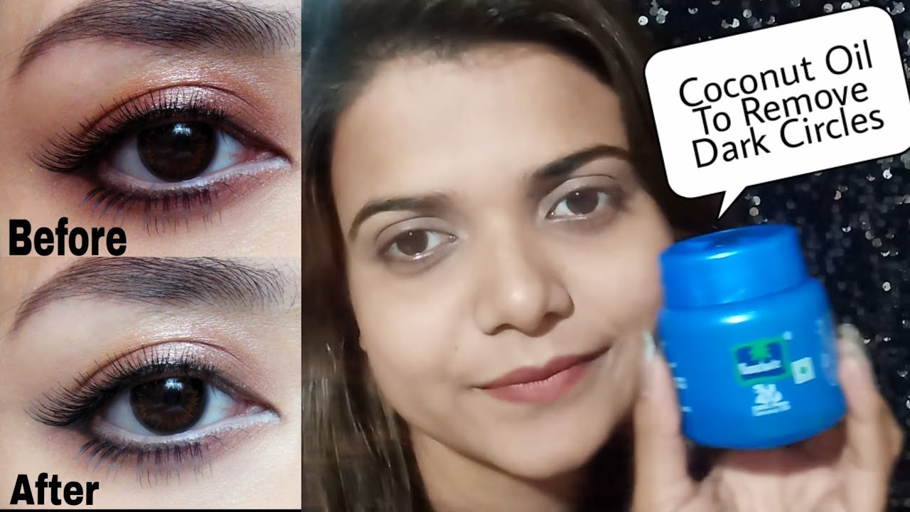Remove Dark Circles Permanently In 1 Day With Coconut Oil 100 Effective Nisha Gorgqueen Youtube