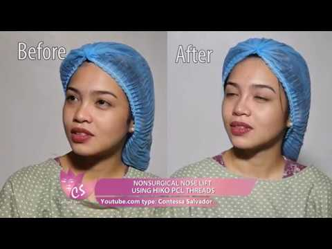 "NON SURGICAL NOSE LIFT USING HIKO PCL THREADS ""Maine Mendoza look a like?"""