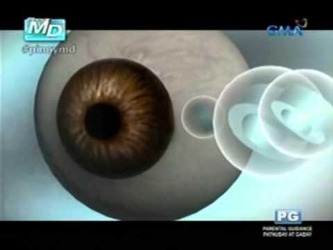 UNTV News: Mga pasyenteng may sintomas ng bird flu virus, magpasuri — DOH (APR122013) from YouTube · Duration:  2 minutes 22 seconds